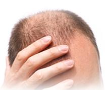Dave Ultimate Hair Rebuilding Program