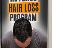 Jerry Williams Reverse Hair Loss