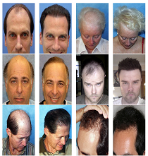 Restore Lost Hair Program